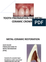 5. Metal Ceramic Restoration