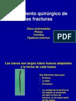 2-Tratamiento de Las Fracturas