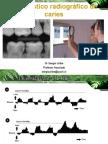 2 diagnóstico radiográfico de caries uach para imprimir