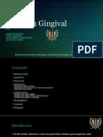 Presentación de Recesión Gingival