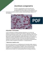 eliptocitosis congenita