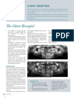 The Ghost Bicuspid