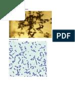 Trichoderma viride enterobacter