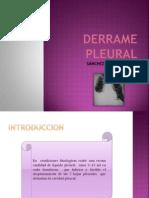 119584736 Derrame Pleural