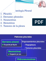 PatologiaPleural