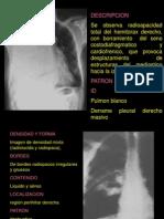repaso2 pulmon2012