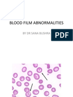 Blood Film Abnormalities