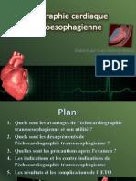 L'échographie cardiaque powerpoint 2003