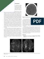 Cerebral Air Embolism; A Result of Atrioesophageal Fistula