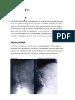 Cifoplastia y Vertebroplastia