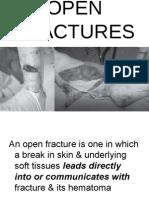 Open FraOpen Fracturecture Part 1