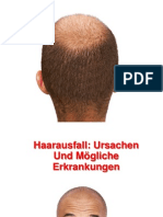 Juckende Kopfhaut Haarausfall - Diffuser Haarausfall, Haarausfall Medikamente