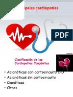 Principales cardiopatías congenitas