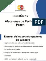 16. Afecciones de Pecho y Pezon