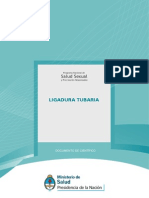 ligadura_tubaria