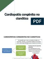 Cardiopatía congénita no cianótica.pptx