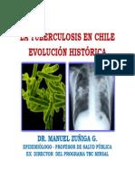04. La Tuberculosis en Chile Ev.historica