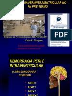 Hemorragia_intraventricular_2008