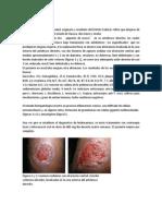 5 Casos Clinicos de Leishmaniasis.docx