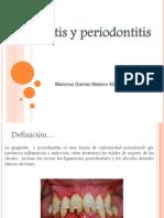 Gingivitis y Periodontitis Expo