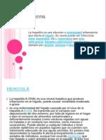 Hepatitis Ale