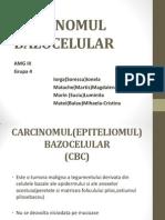 CARCINOMUL BAZOCELULAR ppt