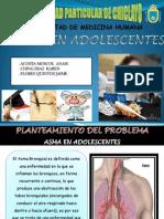 Asma en Adolescentes