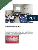 gengivite e periodontite.doc