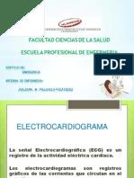 electrocardiograma  mañana