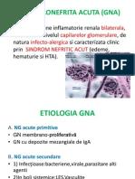 glomerulonefrita acuta