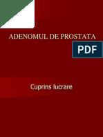Adenomul de Pr,ostata
