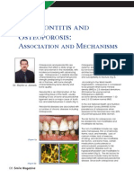 Osteoporois and Periodontitis