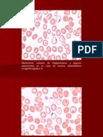 02. Anemia Sideroblastica Congenita