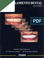 Blanqueamienyo Dental