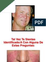 Remedios Para La Rosacea - Tratamientos Para La Rosacea en La Cara, Rosacea Nariz