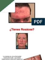 Rosacea Fotos - Remedios Caseros Para La Rosacea, Dermatologia Rosacea