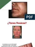 Cremas Para La Rosacea, Laser Para Rosacea, Piel Con Rosacea