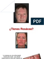 Rosacea en La Piel - Remedios Caseros Para Rosacea, Piel Rosacea Tratamiento