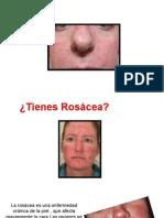 Remedios Naturales Para La Rosacea - Rosacea Sintomas, Rosacea Homeopatia