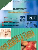 Neoplasia Vaginal