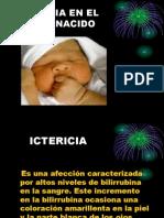 Icteric i a Neonatal
