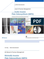 MIPO Minimally Invasive Plate Osteosynthesis 2006-09-08