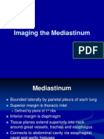 Imaging the Mediastinum