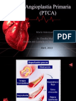 Angioplastia Primaria (PTCA)
