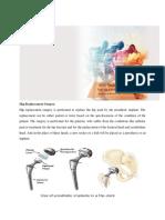 Hip Replacement Surgery- Dr L Tomar