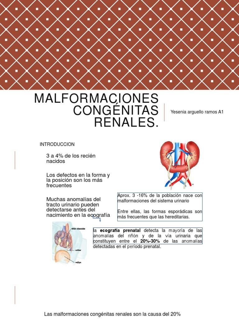 agenesia arteria vertebrale