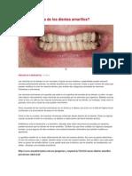 Cuál es la causa de los dientes amarillos