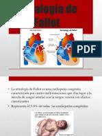 Tetralogía de Fallot.pptx