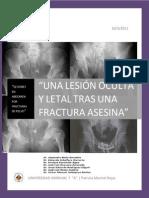 Lesiones en Abdomen Por Fracturs de Plvis