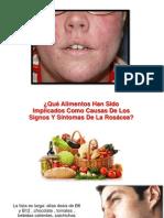Rosacea Tratamiento Casero - Rosacea PDF, Sintomas de Rosacea, Homeopatia Rosacea